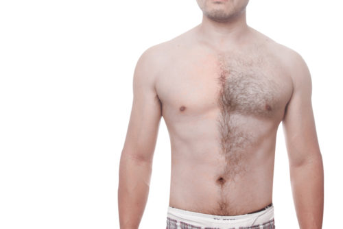 胸毛をなくす・薄くする・生えないようにする方法