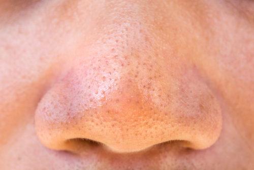 毛穴の黒ずみ いちご鼻