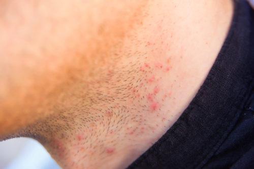 髭剃り 痛い 毛嚢炎
